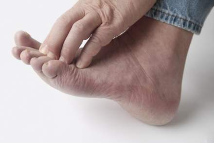 Taking Care of Diabetic Foot